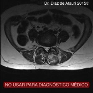 RM_SINOVITIS_HTROFIA_DR_DIAZ_ATAURI